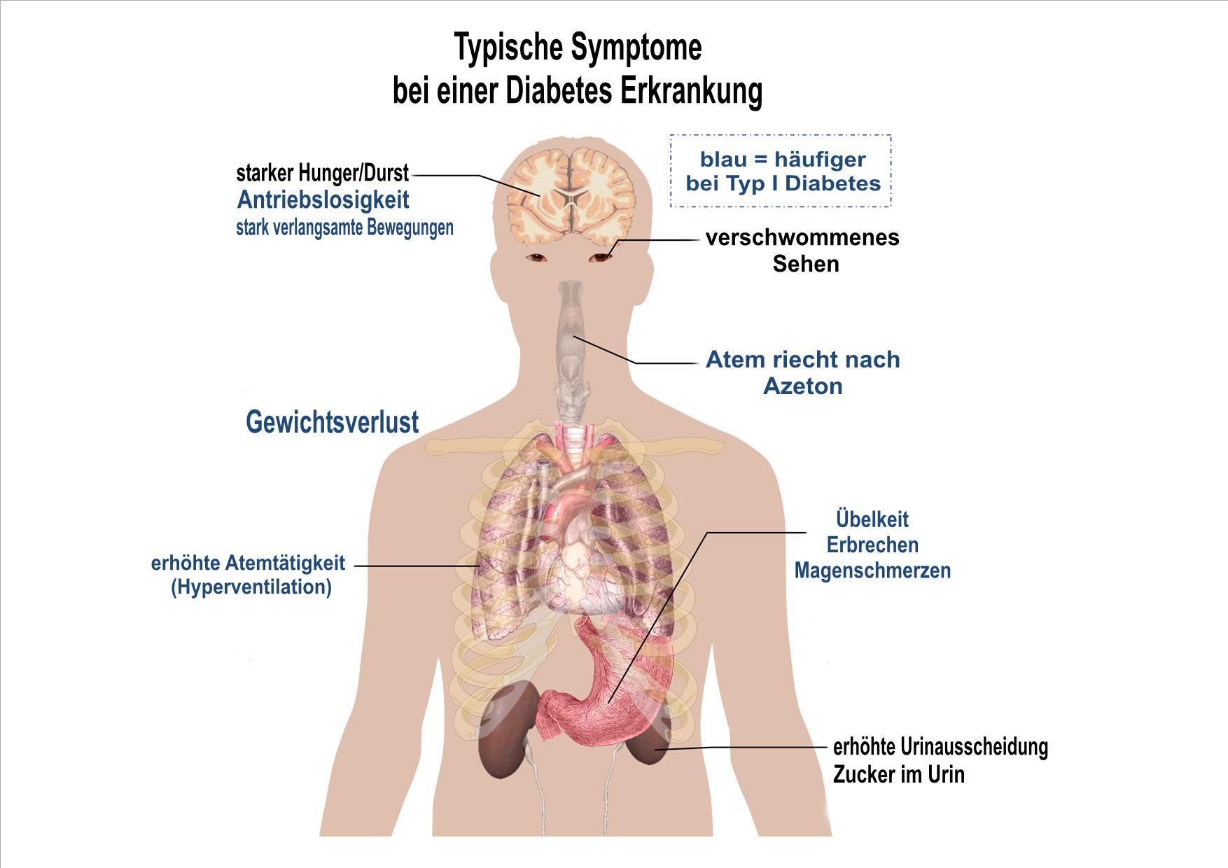 diabetes symptome